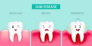 Gingivtis and Periodontitis